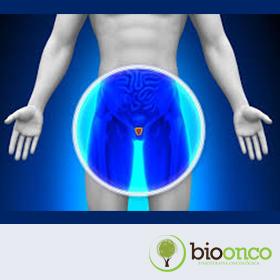 Tratamento fisioterapêutico na incontinência urinária pós-prostatectomia radical